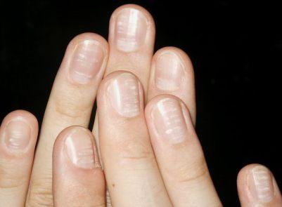 White spots on Nails (leukonychia) White-spots-nails-leukonychia-punctata