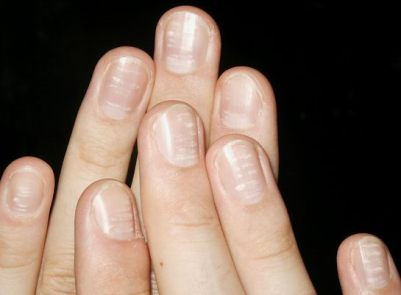 White spots on Nails (leukonychia) White-spots-nails-leukonychia-punctata